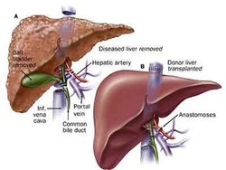 steroid use in liver failure