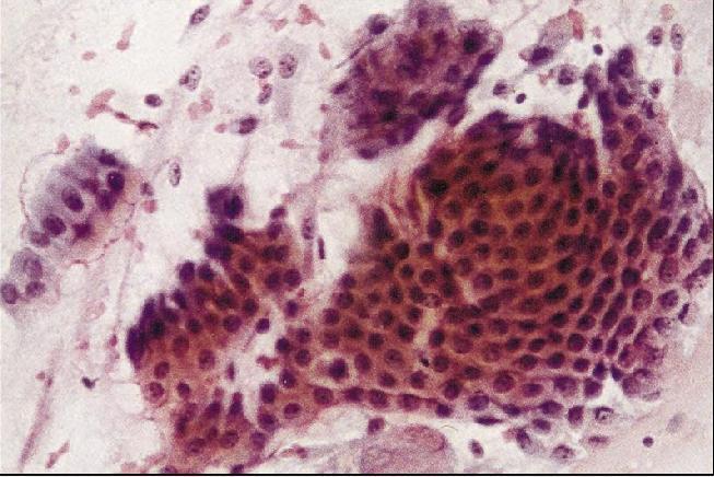凡引起肺泡上皮细胞完整性改变的其他