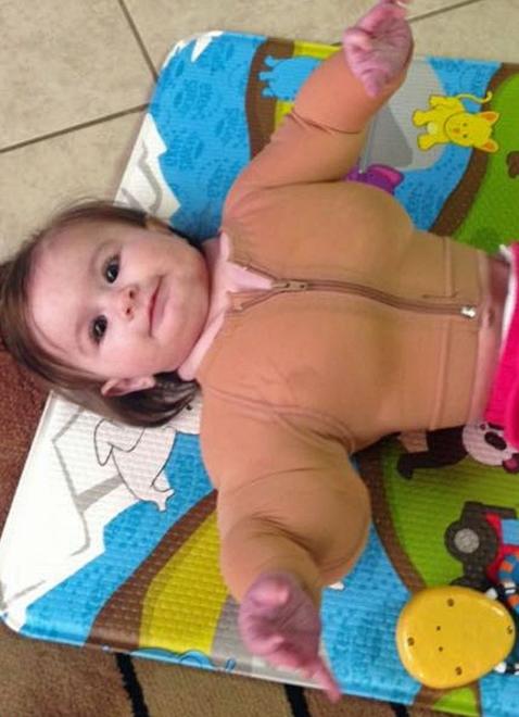 """一岁半女娃得怪病酷似肌肉猛男被称""""小绿巨人"""""""
