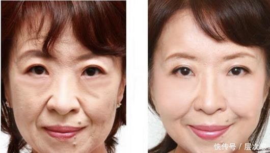 57岁女医生护肤秘方太牛,别人嫌弃的东西她来抹脸,到老没皱纹